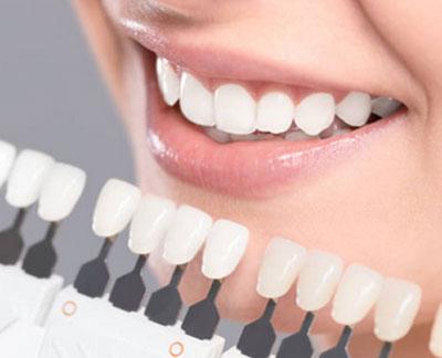 Вредно ли отбеливание зубов - Польза или вред