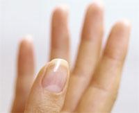 Гниют ногти на руках